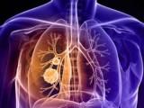 Atasi Penyakit Paru dengan Pengobatan yang Cermat